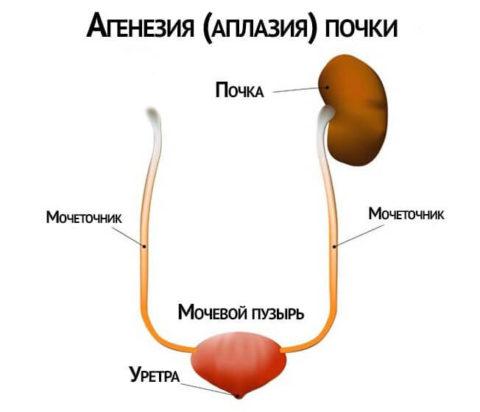 Отсутствие одной из почек является одной из причин гиперплазии имеющегося органа