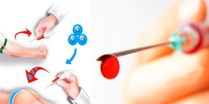 Схема переливания крови из вены в ягодицу