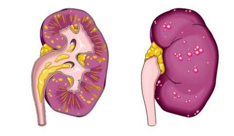 Пиелит – инфекционное воспаление почечных лоханок
