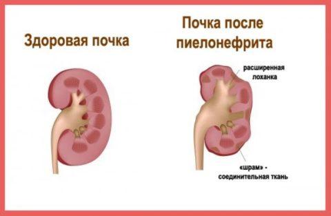 Пиелонефрит и его лечение