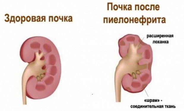пиелонефрит у женщин