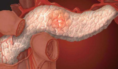 Повреждение поджелудочной железы