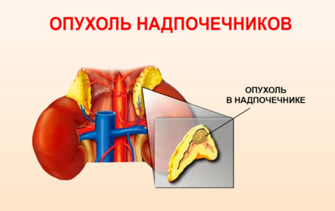 Появление опухолевых образований в надпочечниках достаточно редкое явление, однако, носит оно весьма опасный характер.
