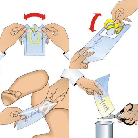 Правила сбора мочи с помощью мочеприемника