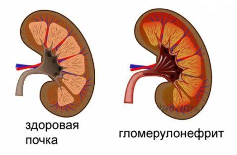 При гломерулонефрите препараты на основе беладонны поможет снять воспаление, боль, отечность.
