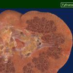 При губчатой форме аномалии почек – орган на срезе напоминает «губку».