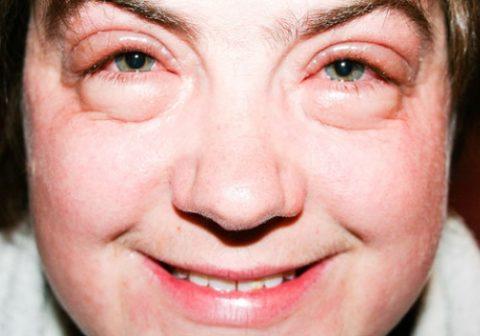 При сбое в работе выделительной системы под глазами образуются отеки, лицо выглядит одутловатым.