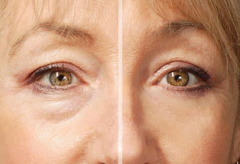 При воспалениях почек появляются мешки под глазами.