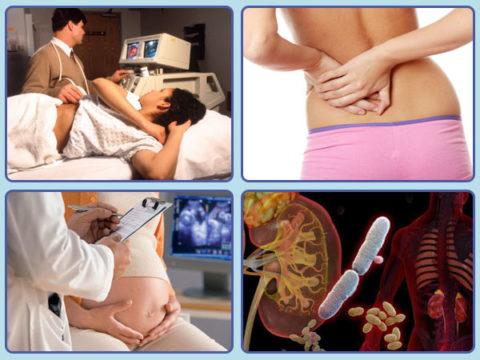 При возникновении почечных колик у будущей матери, необходимо срочно обратиться за медицинской помощью и пройти обследование.