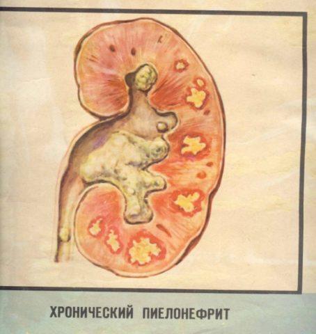 Пример того как выглядит почка при развитии пиелонефрита