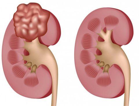 Пример здорового и больного органа