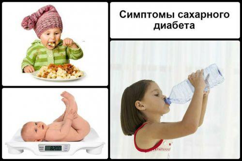 Симптомы сахарного диабета