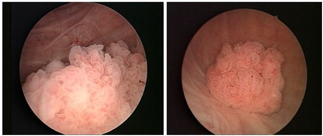 Развитие опухоли в мочевом пузыре