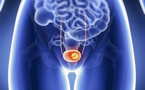 Раку мочевого пузыря отведено около 5% от всех злокачественных новообразований