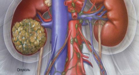 Размер опухоли большой, на этой стадии есть метастазы