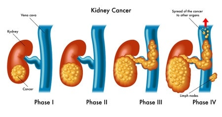 Развитие рака почек по стадиям