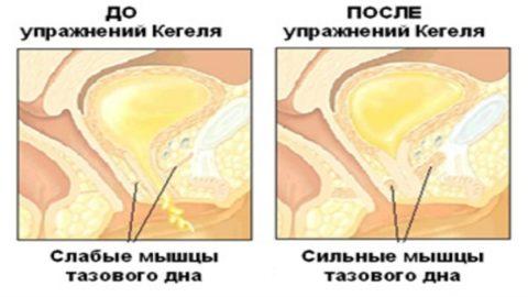 Регулярное выполнение упражнения Кегеля восстанавливает мышечный тонус мочевого пузыря.
