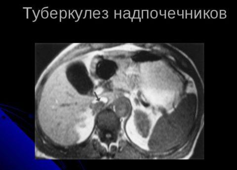 Рентген снимок надпочечника, пораженного туберкулезной палочкой.
