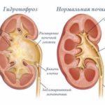 С усилением явления гидронефроза – усиливается и негативная симптоматика: резкие боли в области почек, тошнота и рвота, повышение артериального давления.