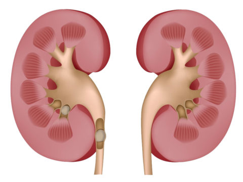 Сдавливания мочеточника конкрементом может вызвать увеличение лоханки