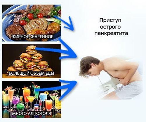 Приступ острого панкреатита