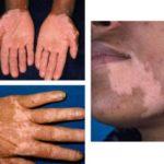 Синдром бронзовой кожи при болезни Аддисона