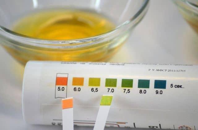 Нормальные показатели содержания кислот в моче
