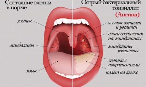 Состояние зева при ангине