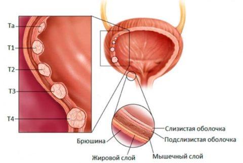 Стадии рака мочевого пузыря