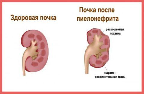 Темный цвет выводящейся из организма жидкости появляется при воспалении почек.
