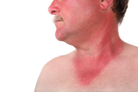 Типичное для ГЛПС покраснение кожи