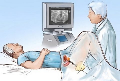 Трансректальный метод имеет высокую точность, но пациенты стараются избежать такого обследования.