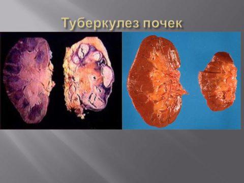 Туберкулез почек является показанием к проведению урографии с контрастированием.