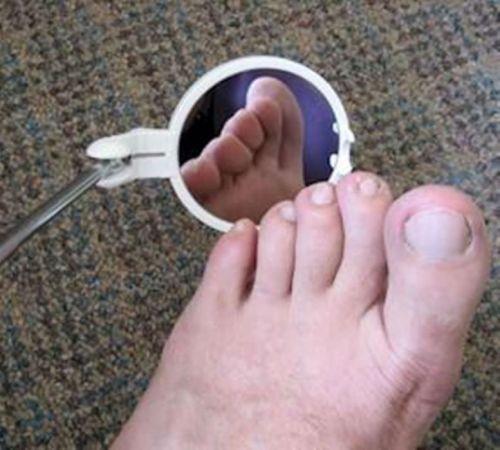 Осмотр ступни при помощи зеркала