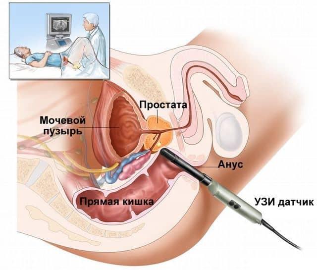 3. Трансректальная диагностика