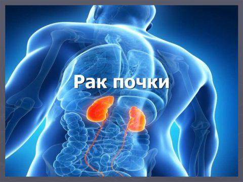В патологический процесс может быть вовлечен как один так и два органа сразу