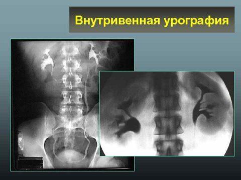 Внутривенная урография проводится достаточно продолжительное время и требует наблюдения пациента в стационаре.
