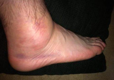 Воспаление суставов нижних конечностей
