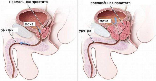 Выделения из уретры при простатите