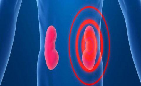 Заболевание мочевыводящих органов