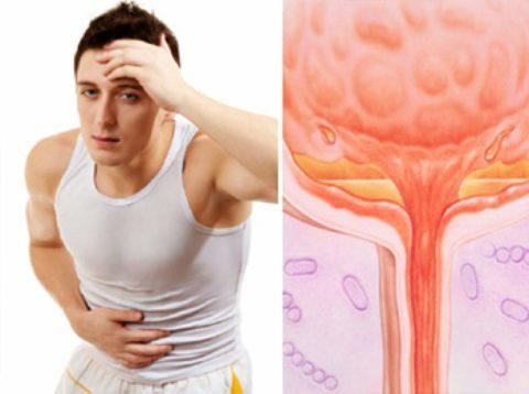 Заболевание приводит к болям, дискомфорту и жжению