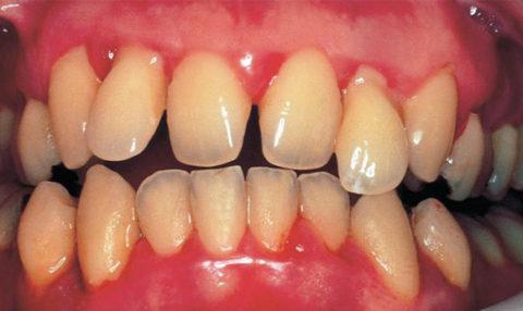 Заболевания зубов и десен.