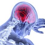 ЗЧМТ и повреждения спинного мозга